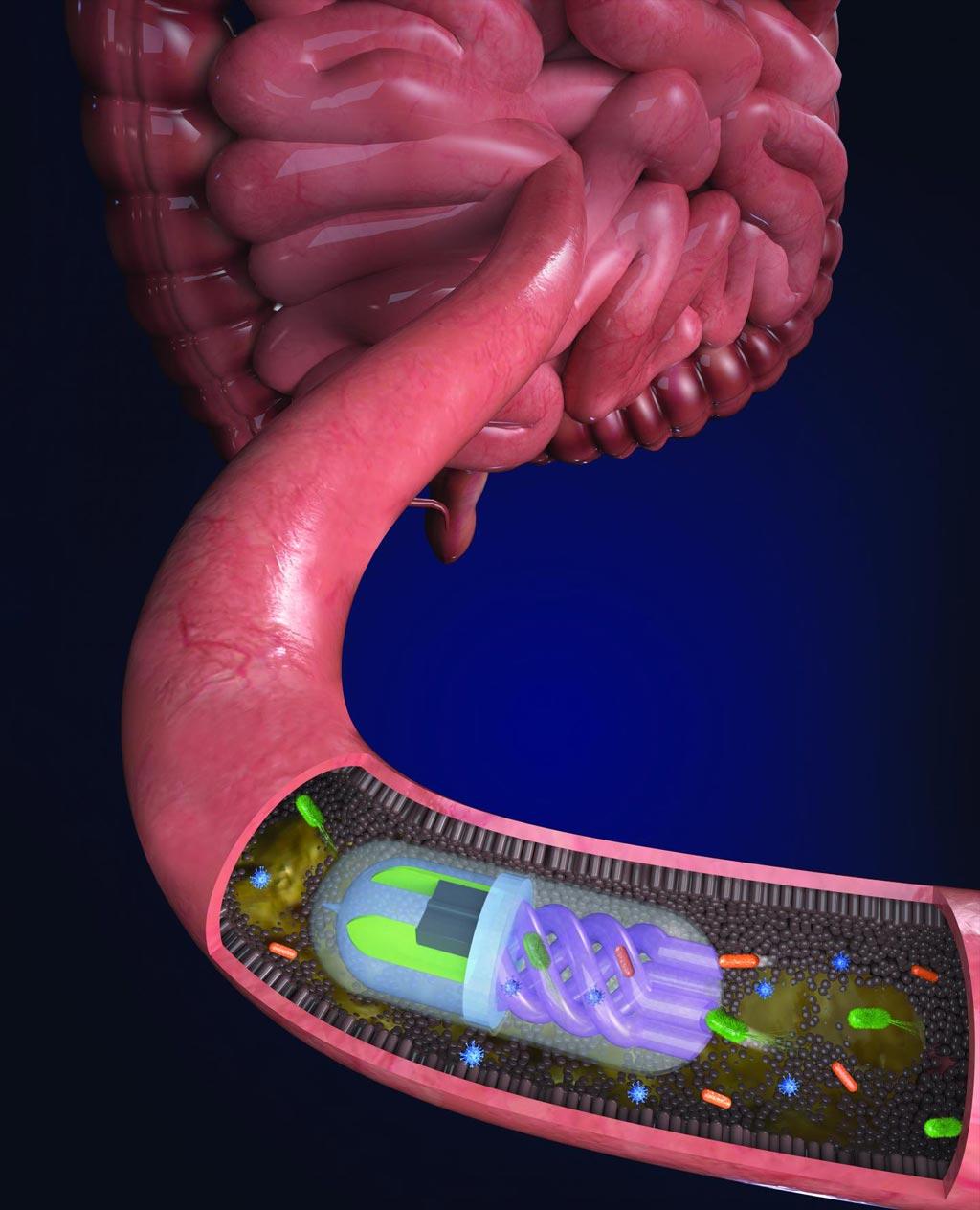 """Imagen: Las bacterias intestinales son atraídas hacia los canales helicoidales por una """"bomba"""" osmótica generada por una cámara llena de sal de calcio dentro de la píldora (Fotografía cortesía de Nano Lab, Universidad de Tufts)."""