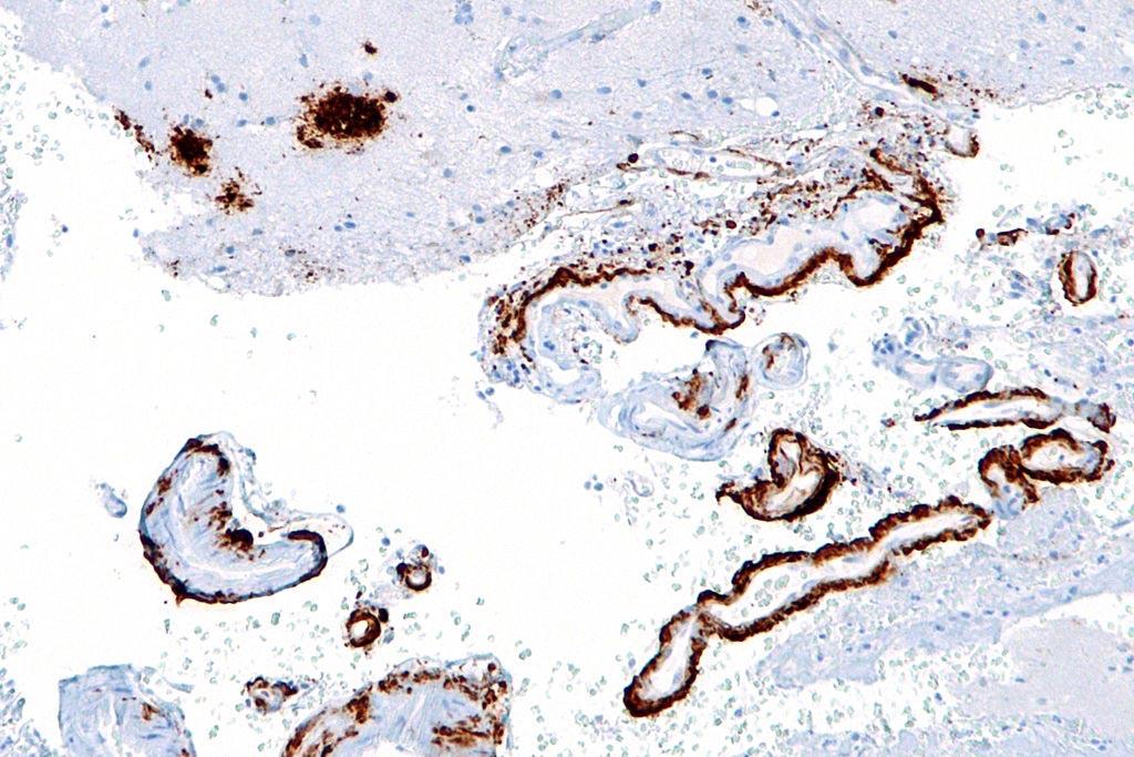 Una microfotografía que muestra beta amiloide (marrón) en placas seniles de la corteza cerebral (parte superior izquierda de la imagen) y vasos sanguíneos cerebrales (derecha de la imagen) usando una inmunocoloración (Fotografía cortesía de Wikimedia Commons).