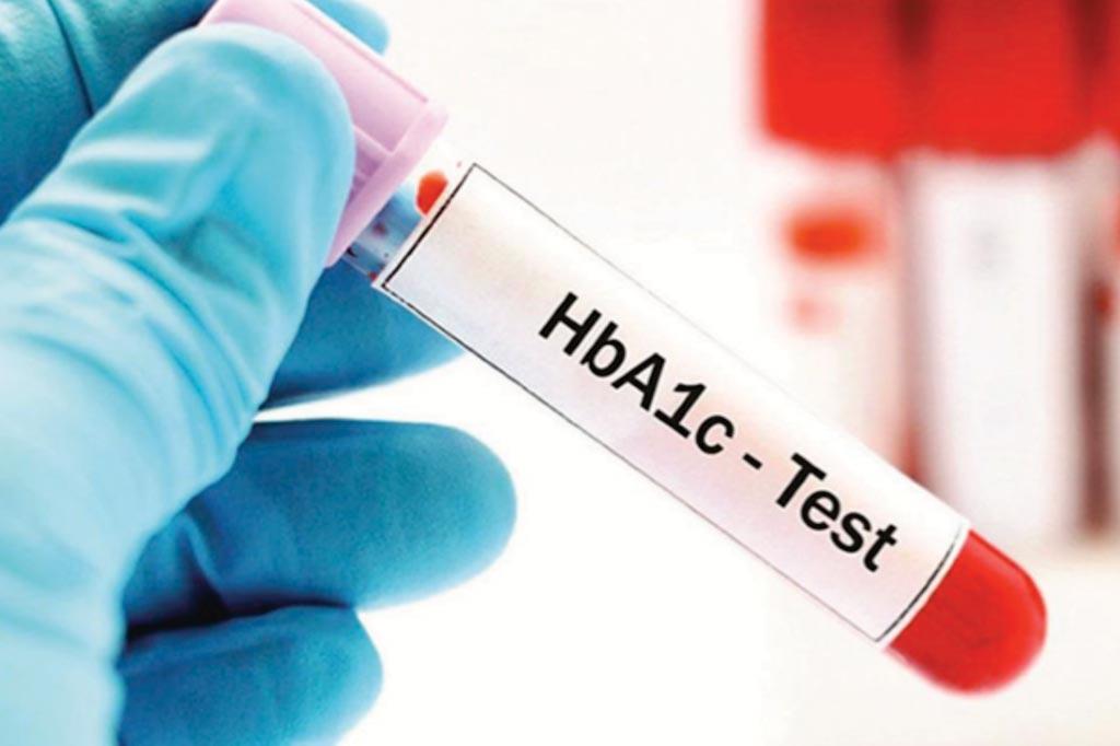 Un aumento en los niveles de HBA1c durante el embarazo se asocia con un mayor riesgo de autismo en el niño (Fotografía cortesía de Thai Anti-Diabetes).