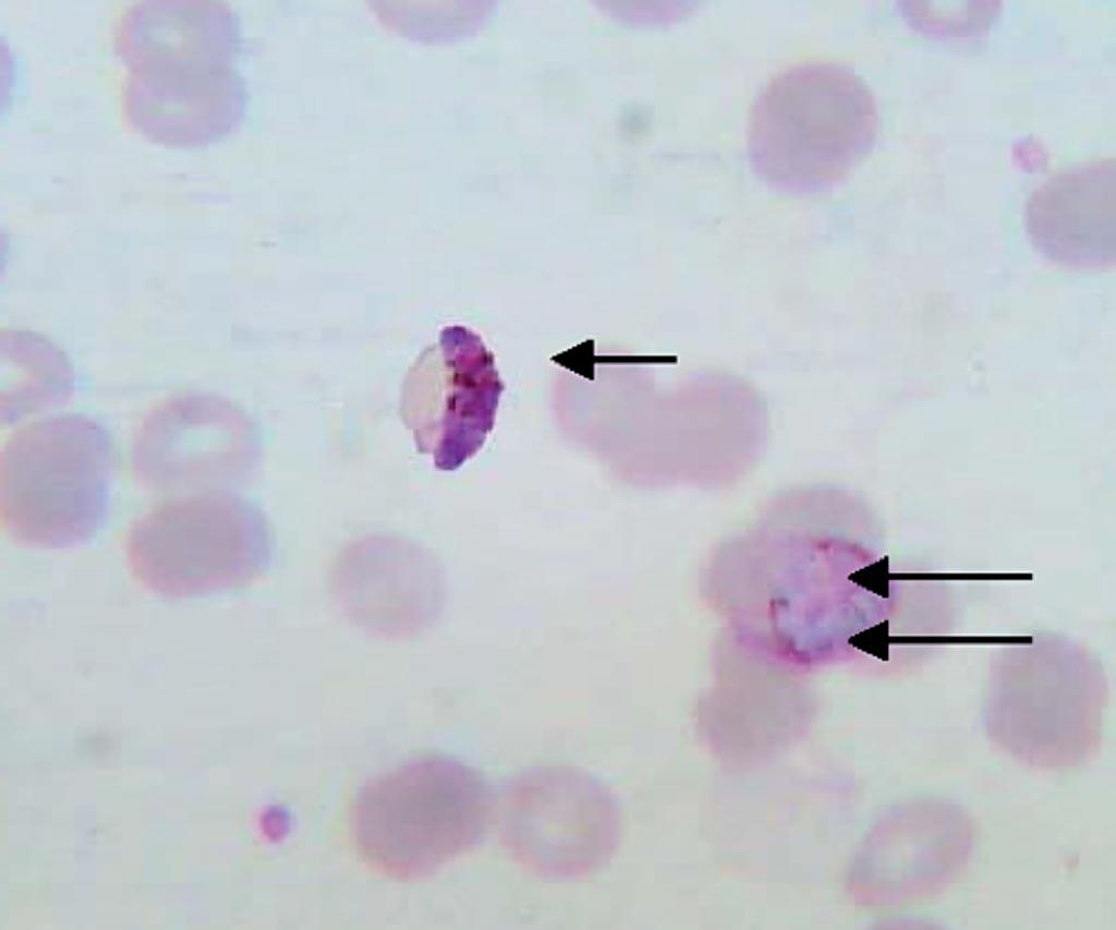 Imagen: Frotis de sangre delgado mostrando un gametocito de Plasmodium falciparum (flecha única) y un esquizonte de P. vivax (flecha doble) de un caso de infección mixta (Fotografía cortesía de Sulekha Bhat et al).