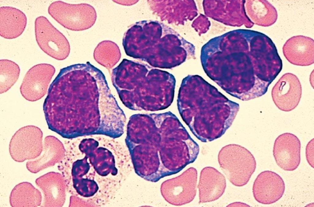 Un frotis de sangre de un paciente con linfoma no Hodgkin que muestra linfocitos muy grandes (Fotografía cortesía de Venngage).