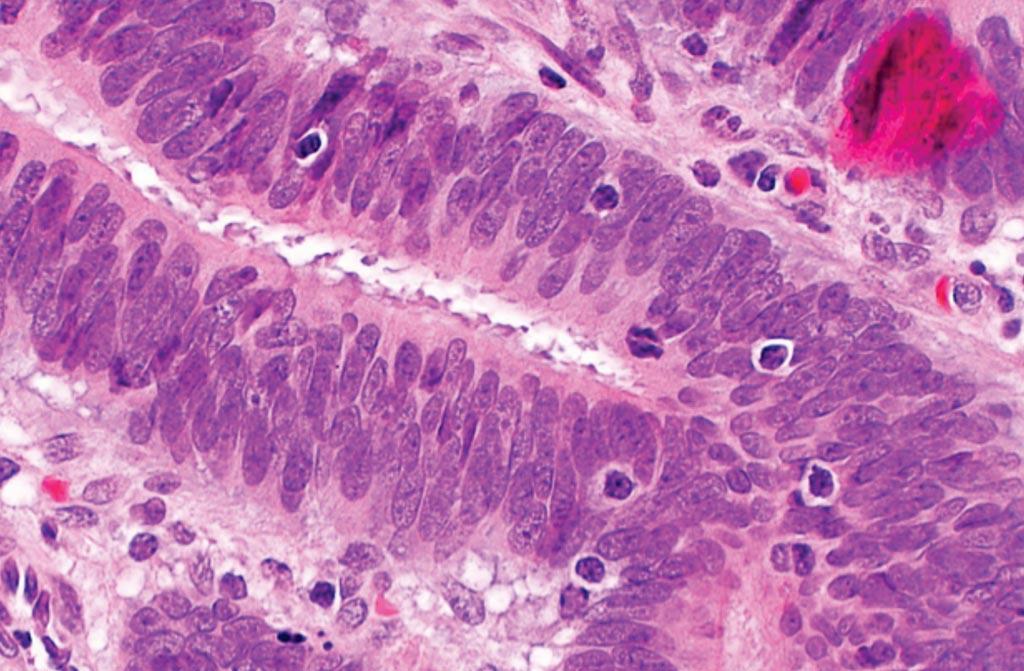 Una microfotografía que muestra linfocitos infiltrantes de tumores en el carcinoma colorrectal, sugestivos de inestabilidad de los microsatélites, y que se pueden ver en el síndrome de Lynch (Fotografía cortesía de Nephron).