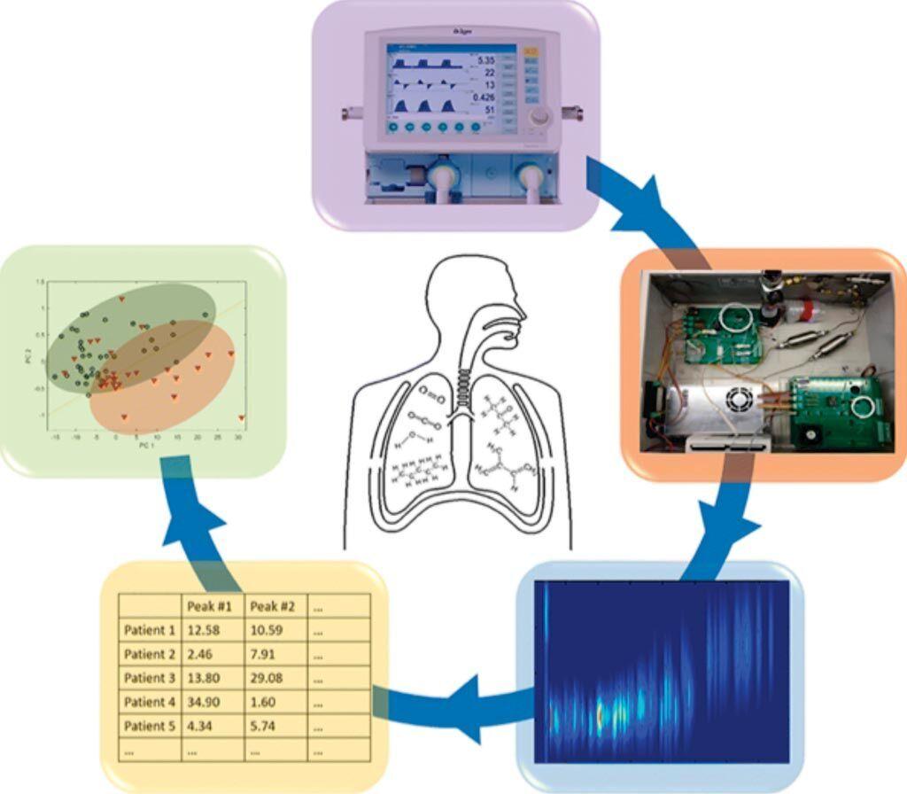 Imagen: Análisis rápido de la respiración para el diagnóstico del síndrome de dificultad respiratoria aguda utilizando un dispositivo portátil de cromatografía de gases bidimensional (Fotografía cortesía de la Universidad de Michigan).