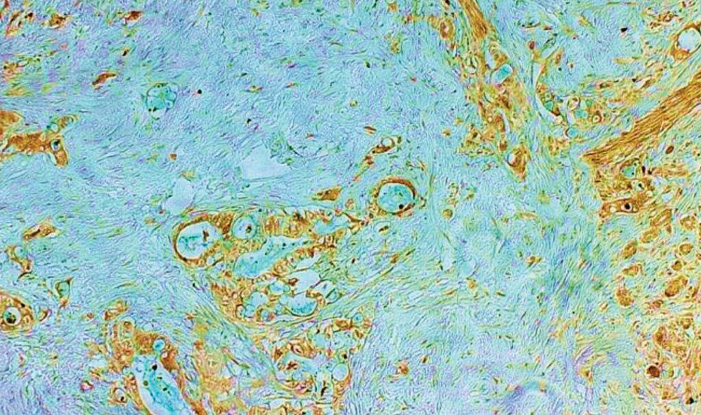 Imagen: Una histopatología del cáncer de páncreas; los científicos que estudian una familia altamente propensa al cáncer han identificado una mutación genética rara, heredada, que aumenta dramáticamente el riesgo de cáncer pancreático y de otros tipos de cáncer durante toda la vida (Fotografía cortesía del Instituto del Cáncer Dana-Farber).