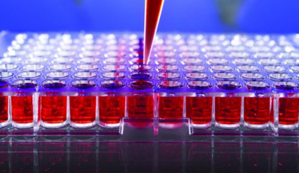 Imagen: Se prevé que el mercado mundial de inmunoensayos alcance casi 20 mil millones de dólares para 2025 (Fotografía cortesía de iStock).