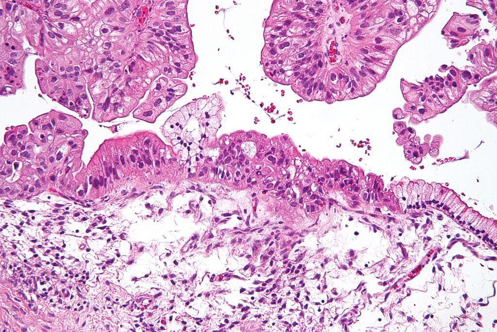 Imagen: Una microfotografía de un tumor ovárico mucinoso de bajo potencial maligno (BPM). La microfotografía muestra: epitelio mucinoso simple (derecha) y epitelio mucinoso que se pseudoestratifica (izquierda - diagnóstico de un tumor de BPM). El epitelio con una arquitectura tipo fronda se ve en la parte superior de la imagen (Fotografía cortesía de Wikimedia Commons).