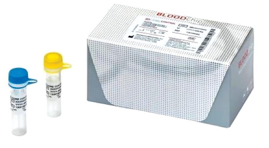 Imagen: El ID Core XT BLOODchip es un análisis molecular usado en la medicina transfusional para ayudar a determinar la compatibilidad de la sangre y podría complementar la metodología clásica usada para determinar la compatibilidad de la sangre (Fotografía cortesía de Progenika Biopharma SA).