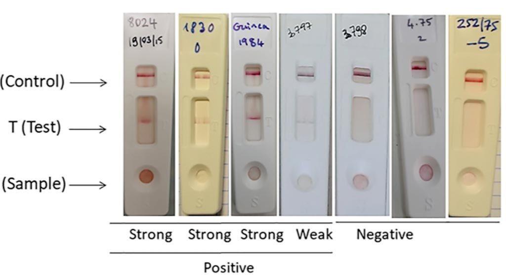 Imagen: Prueba de tira de inmunocromatografía de flujo lateral (LFT) para la fiebre del Valle del Rift (FVR) útil para la detección de esta enfermedad utilizando los dos anticuerpos monoclonales seleccionados (Fotografía cortesía de la Universidad de Montpellier).