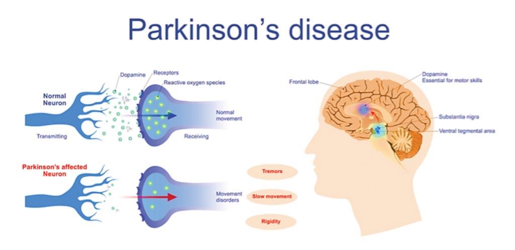 Imagen: Se ha relacionado una mutación genética específica del Parkinson con un mayor riesgo de leucemia y de cáncer de colon (Fotografía cortesía de BioNews Services).