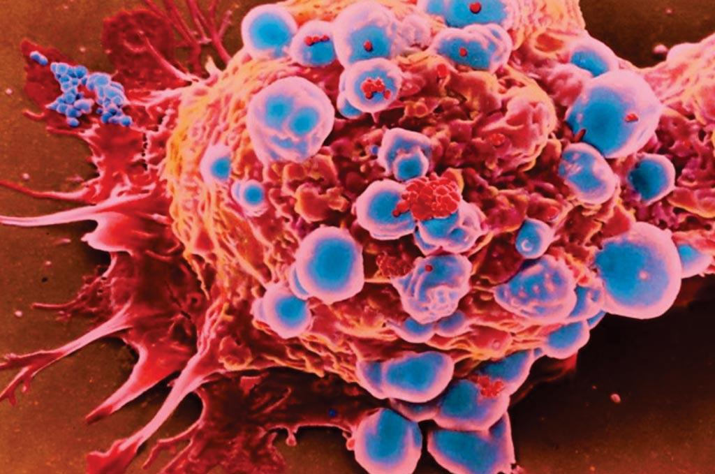 Imagen: Microfotografía electrónica de barrido (SEM) de células de cáncer de mama. Las pruebas para varios genes de alto riesgo, no seleccionadas, para todas las pacientes con cáncer de mama, son extremadamente rentables (Fotografía cortesía de Marie Thibault).