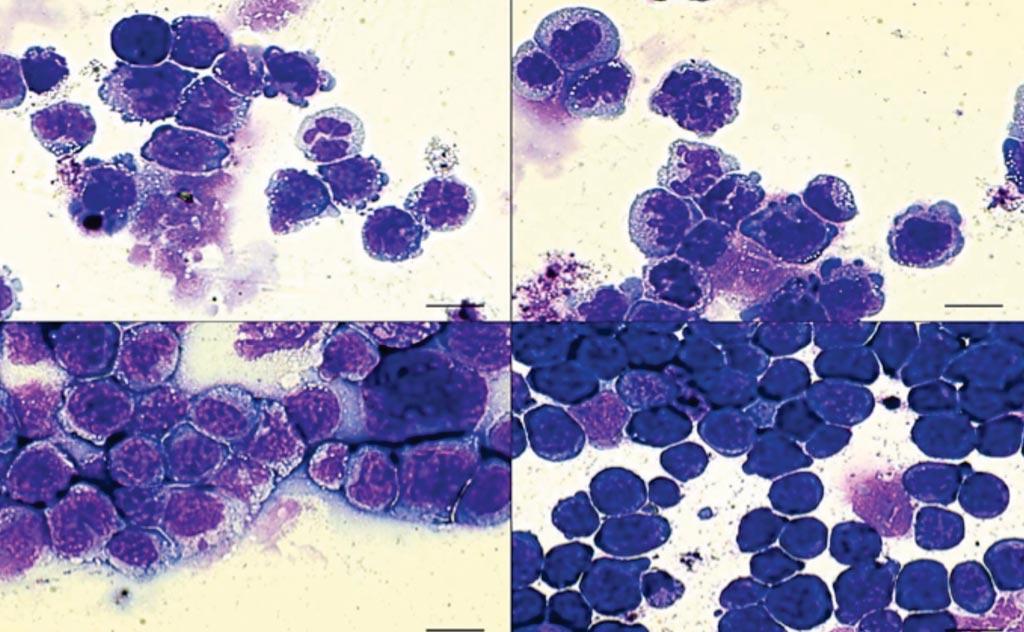 Imagen: En la leucemia mieloide aguda (LMA), hay células sanguíneas defectuosas (de color púrpura). Cuando las células tienen una doble mutación de los genes IDH2 y SRSF2 (abajo a la derecha), el número de células defectuosas aumenta considerablemente, indicando una enfermedad más letal (Fotografía cortesía del Laboratorio Cold Spring Harbor).
