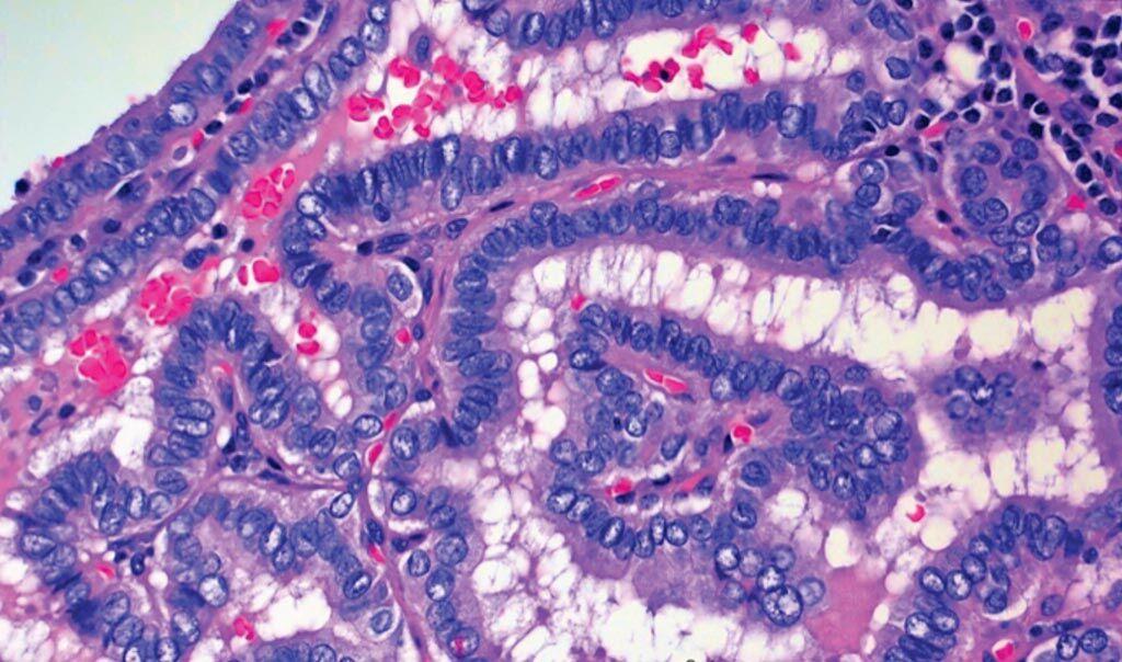 Imagen: Una imagen de microscopio de células de cáncer de tiroides, específicamente de carcinoma papilar de tiroides o CPT (Fotografía cortesía de Wendong Yu/Facultad de Medicina Baylor).
