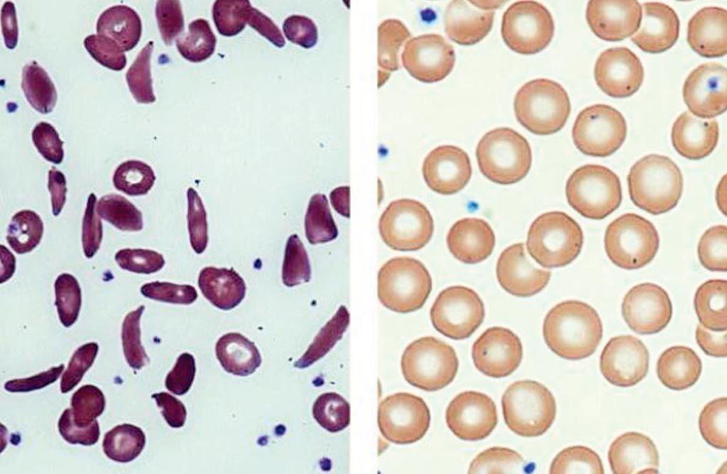 Imagen: Sangre extraída de un paciente con células falciformes (izquierda) y de un paciente después del trasplante de células madre (derecha) (Fotografía cortesía de la Rama de Hematología Clínica y Molecular de los NIH).