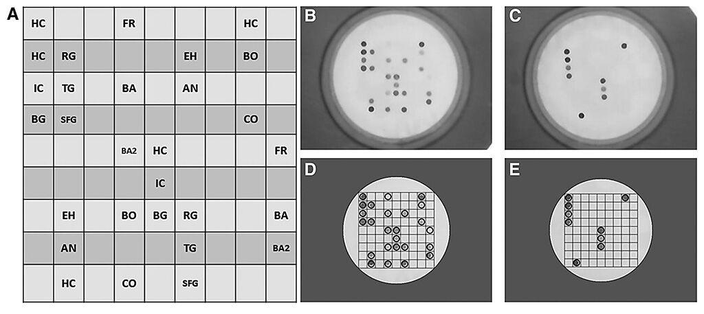 Imagen: Detección simultánea de Anaplasma spp., Bartonella spp., Borrelia spp., Coxiella burnetii, Francisella spp. y Rickettsia spp. en un kit de chip de flujo de bacterias transmitidas por garrapatas (TBFC) (Fotografía cortesía de la Universidad de Rutgers).