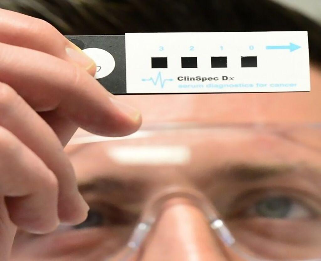Imagen: La nueva prueba de ClinSpec Diagnostics puede diagnosticar el cáncer de cerebro con una muestra de sangre (Fotografía cortesía de la Universidad de Strathclyde).