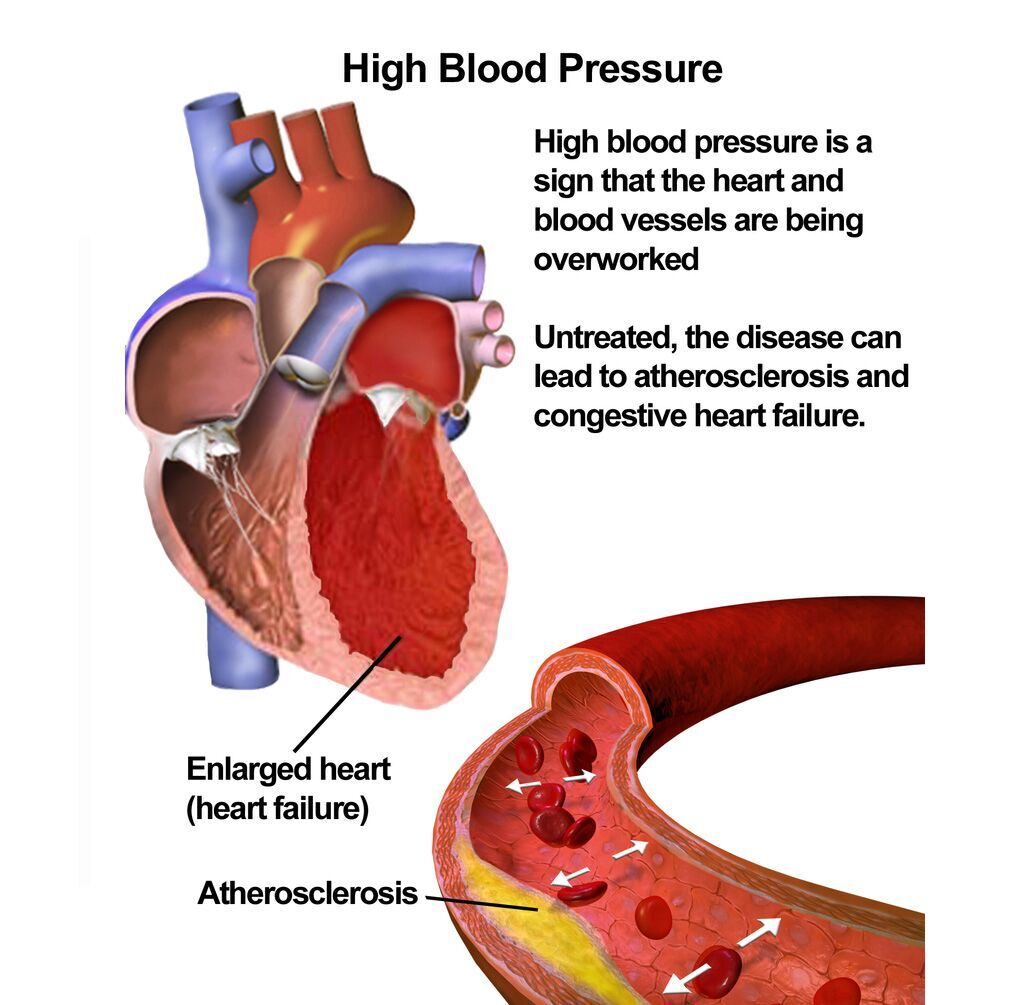 Imagen: Ilustración que muestra los efectos de la presión arterial alta (Fotografía cortesía de Wikimedia Commons)