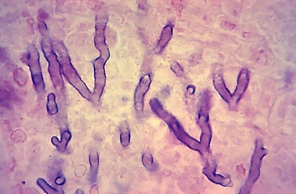 Imagen: Microfotografía de una muestra de tejido pulmonar humano coloreada con hematoxilina-eosina, extraída de un paciente con aspergilosis pulmonar. Los cambios histopatológicos indican la presencia de organismos fúngicos de Aspergillus sp. Observe las hifas ramificadas entre el tejido pulmonar (Fotografía cortesía del Instituto de Patología de las Fuerzas Armadas).