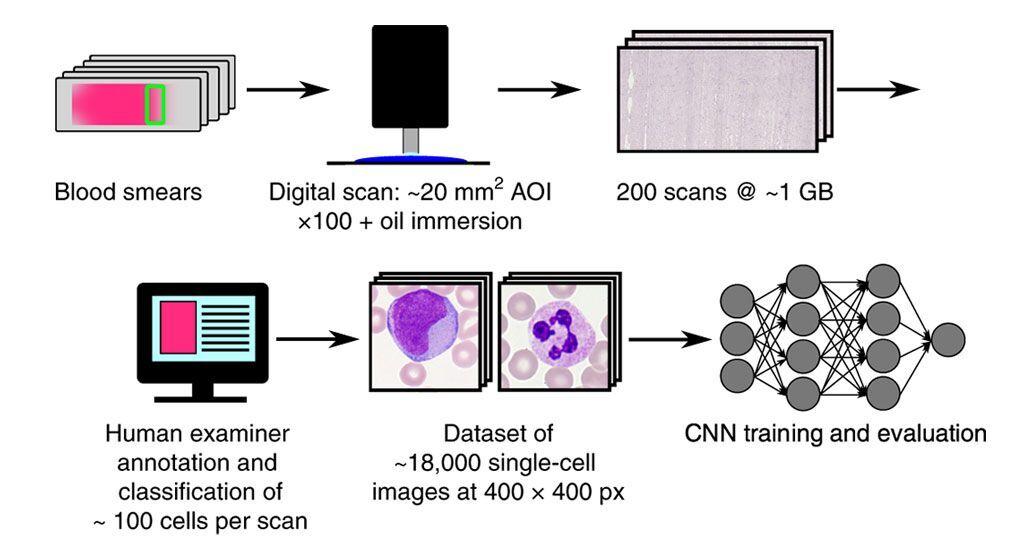 Imagen: Diagrama esquemático de cómo el algoritmo de aprendizaje profundo clasifica los leucocitos en un frotis de sangre de manera automatizada y estandarizada (Fotografía cortesía del Helmholtz Zentrum München/Dr. Carsten Marr)