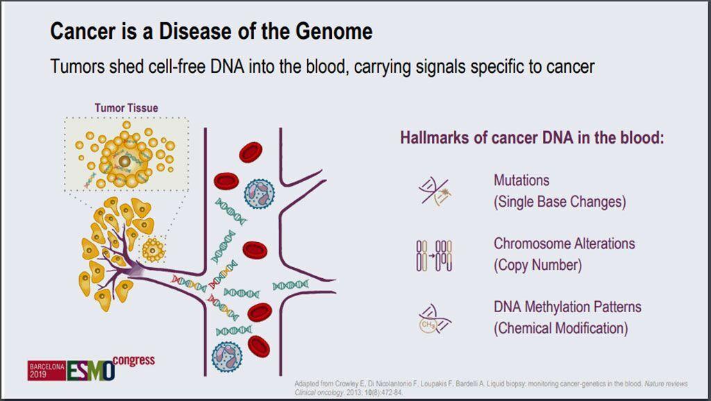 Imagen: Un análisis de sangre nuevo de alta exactitud puede detectar múltiples cánceres (Fotografía cortesía de la Sociedad Europea de Oncología Médica)