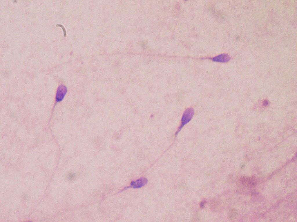 Imagen: Espermatozoides humanos coloreados para determinar la calidad del semen en el laboratorio clínico (Fotografía cortesía de Wikimedia Commons)