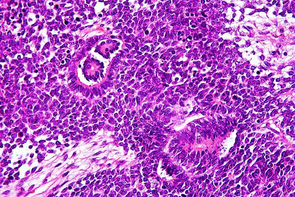 Imagen: Histopatología del tumor de Wilms o nefroblastoma, que es un tipo de cáncer de riñón que se observa predominantemente en niños (Fotografía cortesía de Nephron).
