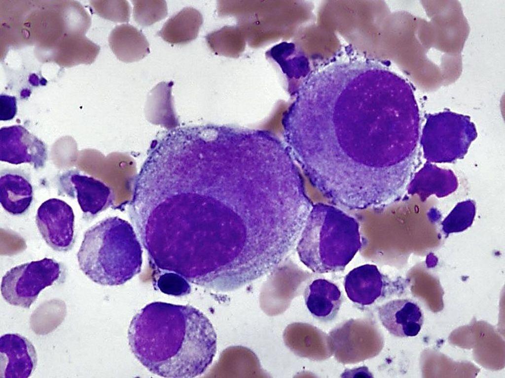 Imagen: Película delgada de la médula ósea de un paciente con síndrome mielodisplásico mostrando pequeños megacariocitos hipolobulados que son típicos del síndrome con una del (5q) aislada (Fotografía cortesía de John P. Hunt, MD)