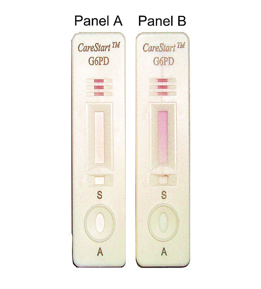 Imagen: Diseño de la prueba de detección de deficiencia, CareStart G6PD, e interpretación de los resultados: Panel A, sin cambio de color para una muestra con actividad enzimática deficiente de G6PD; Panel B, color púrpura distintivo para muestra con actividad enzimática normal de G6PD (Fotografía cortesía de la Universidad Charles Darwin).