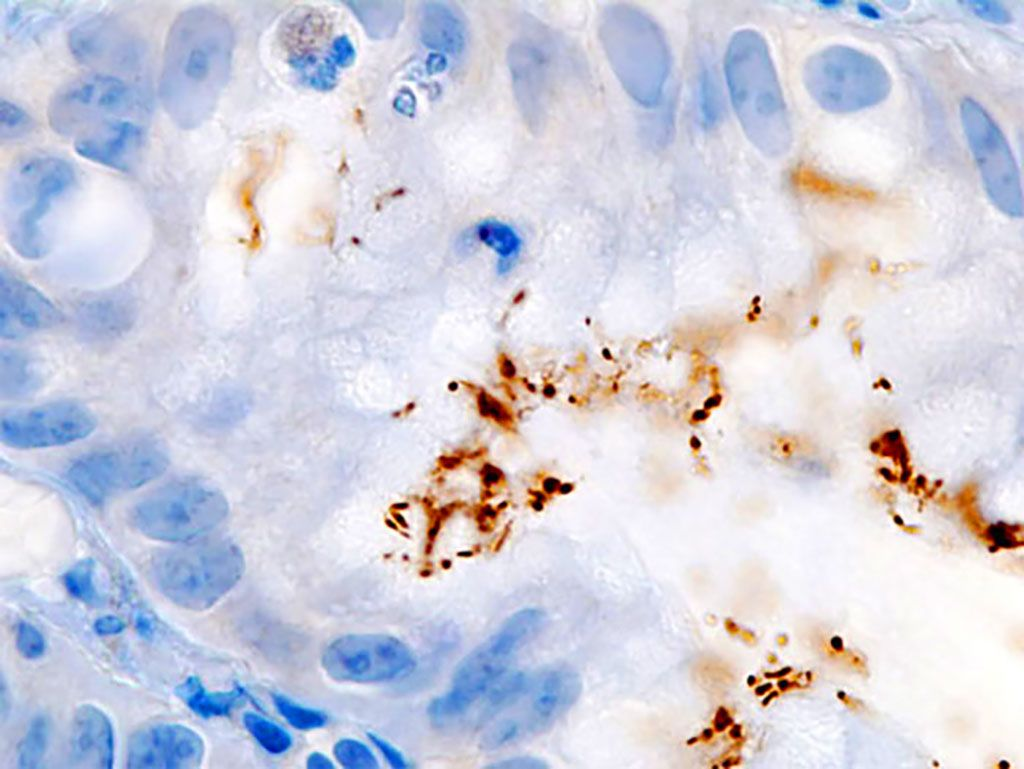 Imagen: Inmunocoloración de la infección por Helicobacter pylori en un hoyo foveolar gástrico demostrado en una biopsia gástrica endoscópica (Fotografía cortesía de KGH).