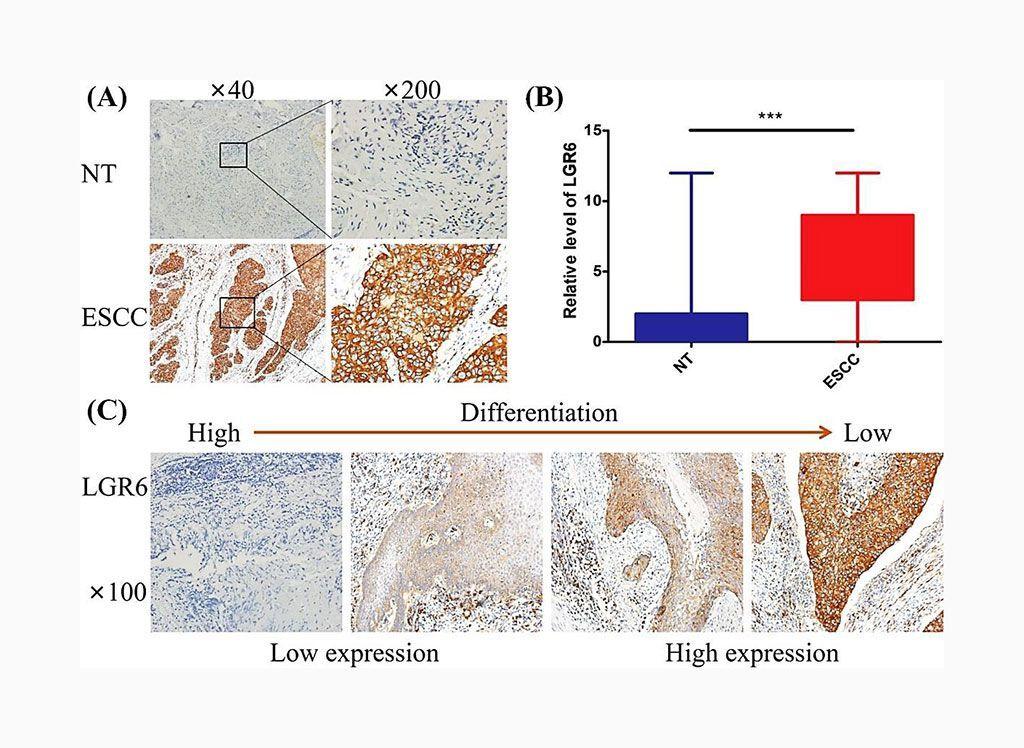 Imagen: Inmunocoloración histológica que muestra la expresión del receptor 6 acoplado a proteínas G que contiene repeticiones ricas en leucina (LGR6) en el carcinoma escamocelular de esófago (ESCC) y en tejidos esofágicos normales (NT) (Fotografía cortesía de la Universidad Médica de Fujian).