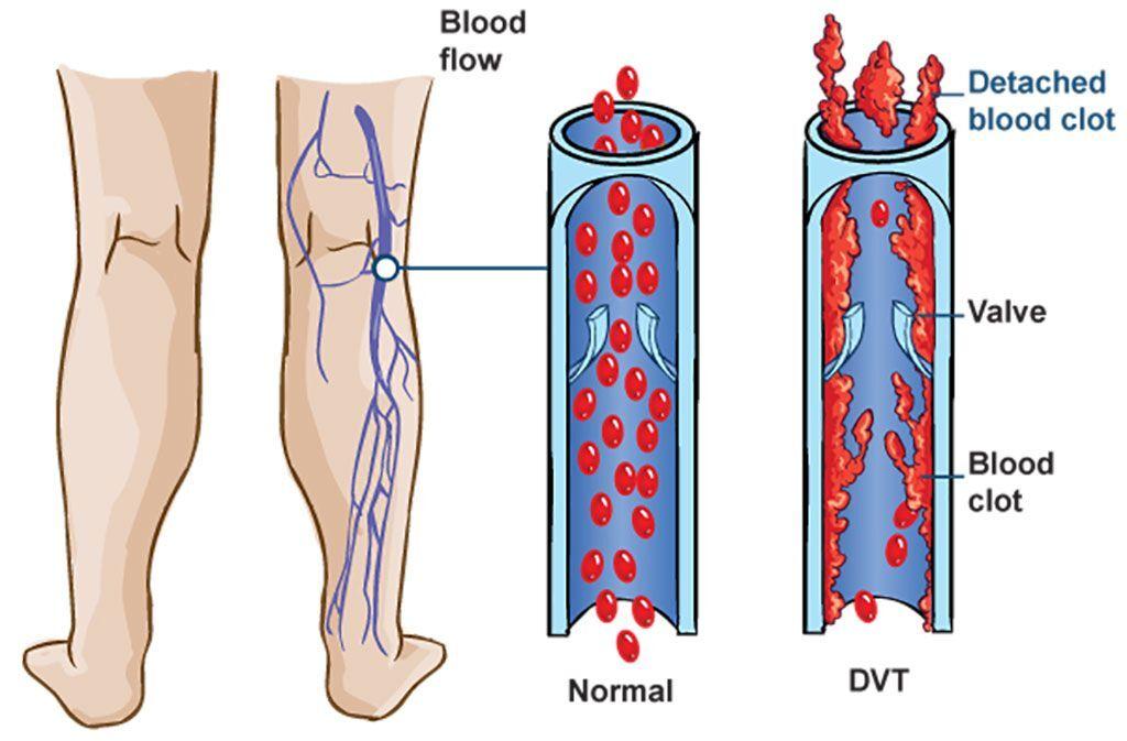 Imagen: Diagrama esquemático de la trombosis venosa profunda (TVP) asociada con el síndrome metabólico (Fotografía cortesía de MediConnect).