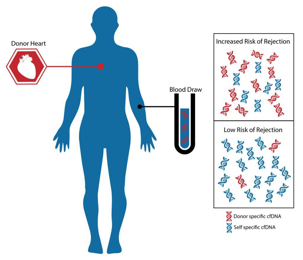 Imagen: La prueba myTAIHEART es una prueba poderosa, no invasiva, que usa una pequeña muestra de sangre para determinar si un paciente tiene un riesgo bajo o mayor de rechazar su trasplante de corazón. myTAIHEART funciona midiendo la fracción de ADN libre de células (cfADN) presente en el torrente sanguíneo que es atribuible al corazón trasplantado. Una fracción elevada de donante (% DF) se asocia con un mayor riesgo de rechazo celular agudo (Fotografía cortesía de TAI Diagnostics).