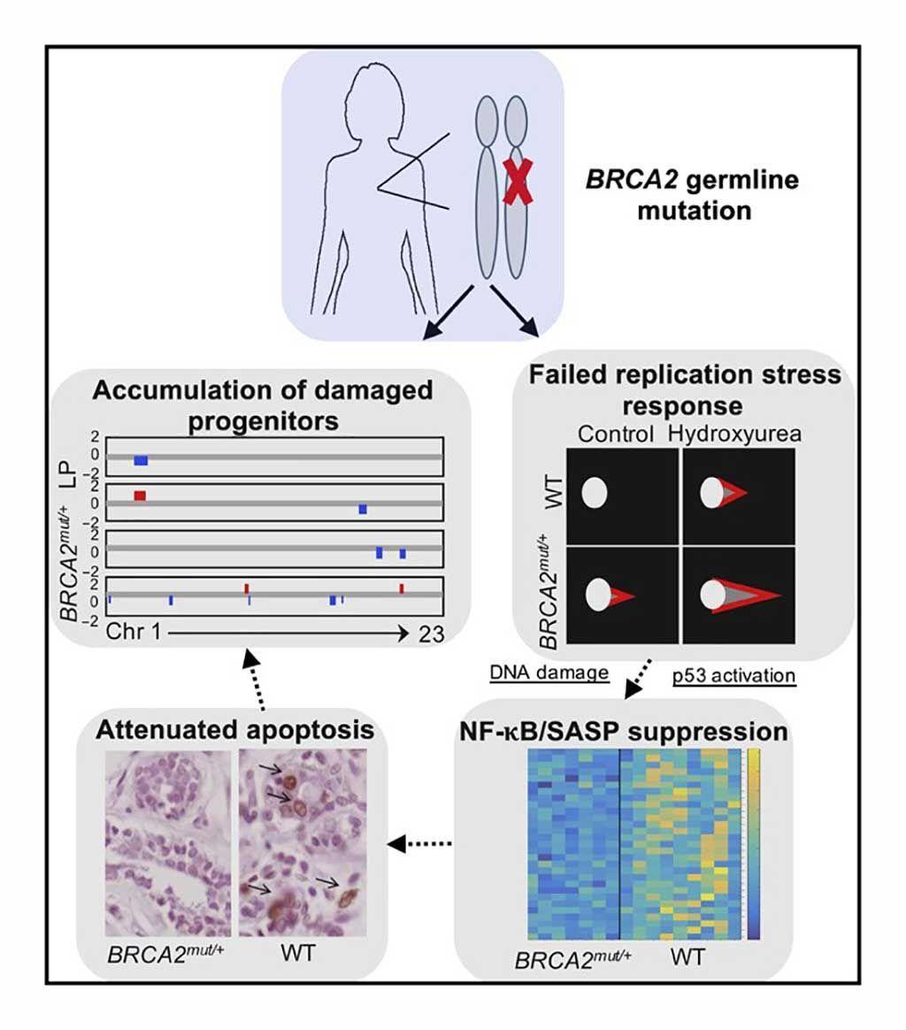 Imagen: Resumen de los hallazgos en tejidos primarios de mama BRCA2mut/+: las células epiteliales progenitoras de portadoras de BRCA2 de línea germinal heterocigótica exhiben daño en el ADN, estrés de replicación fallido y respuestas al daño, junto con apoptosis atenuada. Los análisis de pérdida de heterocigosidad (LOH) sugieren que estos hallazgos pueden reflejar un fenotipo haploinsuficiente para el BRCA2 in vivo (Fotografía cortesía del Hospital General de Massachusetts).