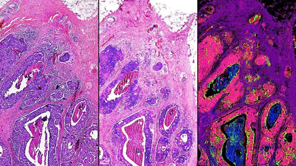 Imagen: Esta comparación lado a lado de una biopsia de tejido mamario demuestra algunas de las capacidades del microscopio híbrido óptico-infrarrojo. A la izquierda, una muestra de tejido teñida por métodos tradicionales. Centro, una coloración computarizada creada a partir de imágenes híbridas óptico-infrarrojas. Derecha, tipos de tejidos identificados con datos infrarrojos. El rosa en esta imagen significa cáncer maligno (Fotografía cortesía de Rohit Bhargava, PhD).