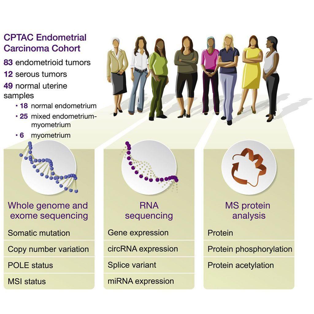 Imagen: Caracterización proteogenómica del carcinoma de endometrio (Fotografía cortesía del Consorcio Clínico de Análisis de Tumores Proteómicos).