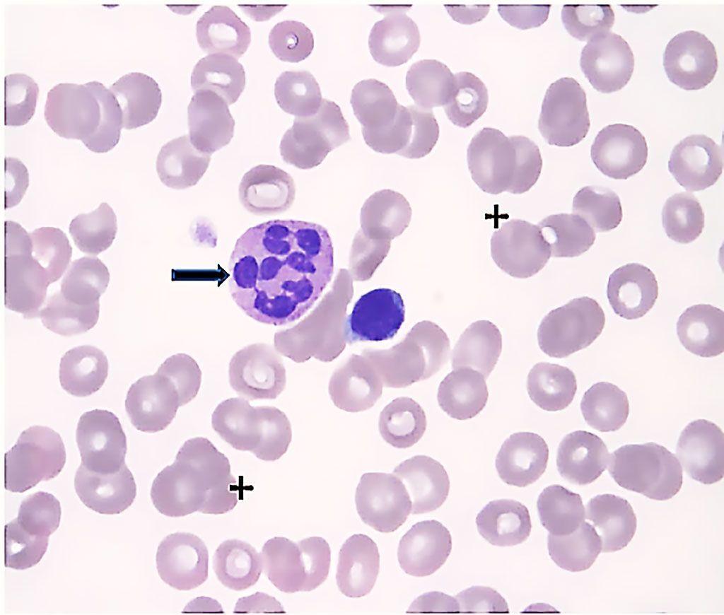 Imagen: Frotis de sangre periférica de un paciente con síndrome mielodisplásico que muestra anemia macrocítica e hipercrómica (cruzada), neutrófilos hipersegmentados (flecha) y trombocitopenia moderada (Fotografía cortesía de Jong-Hwa Kim, MD, PhD).