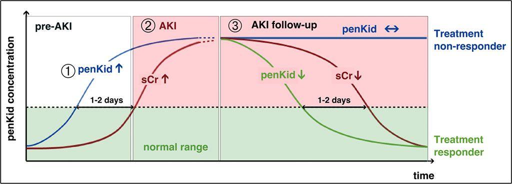 Imagen: El análisis penKid permite la medición de la función renal real con una simple extracción de sangre. Puesto que no es inferior al estándar de oro, los valores crecientes y decrecientes de penKid revelan el empeoramiento y la mejora de la función renal independientemente de la inflamación o cualquier otra comorbilidad, lo que permite la inclusión de todos los pacientes críticamente enfermos (foto cortesía de SphingoTec GmbH).