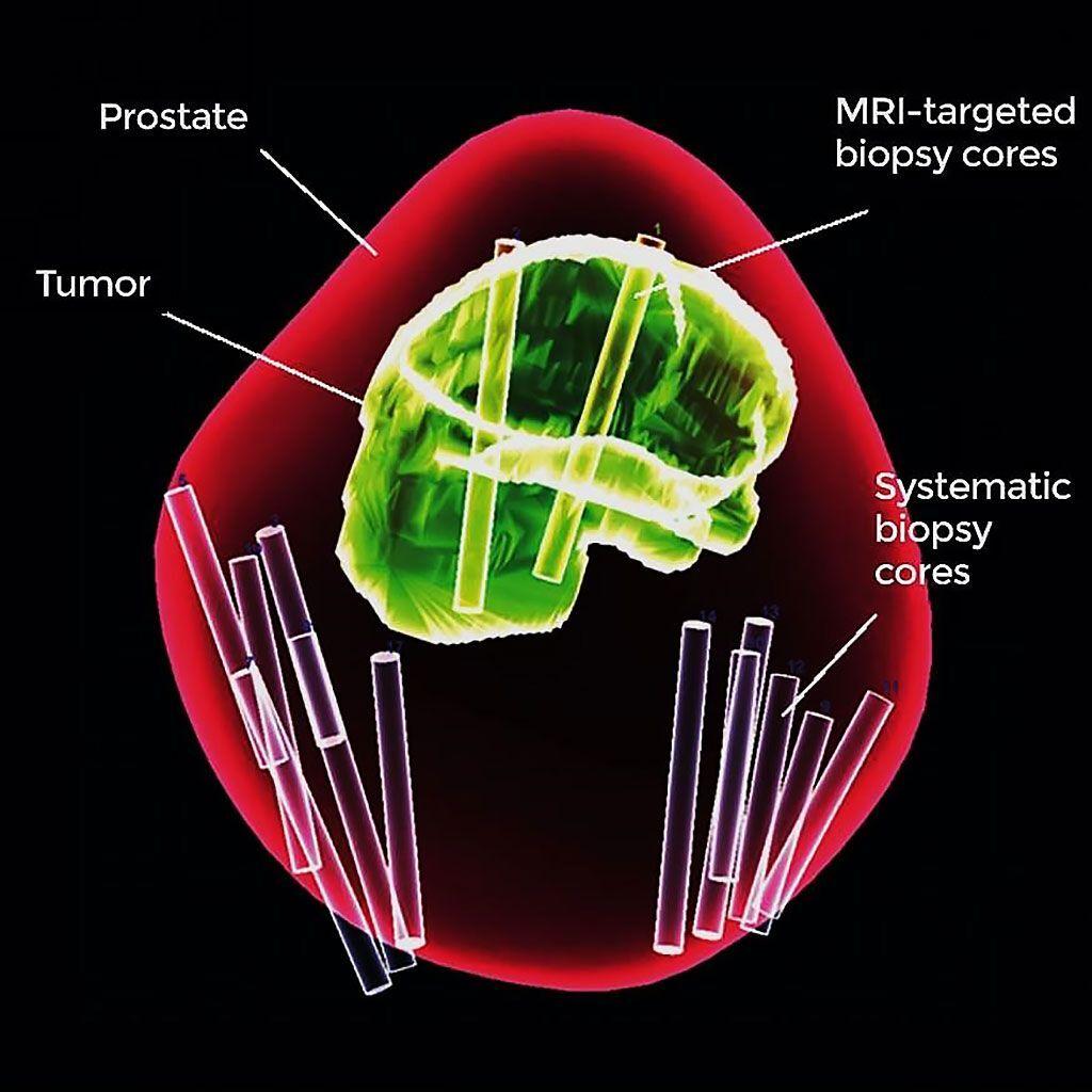 Imagen: El análisis con el método combinado de biopsia mejora el diagnóstico de cáncer de próstata (Fotografía cortesía del Centro Clínico de los Institutos Nacionales de Salud).