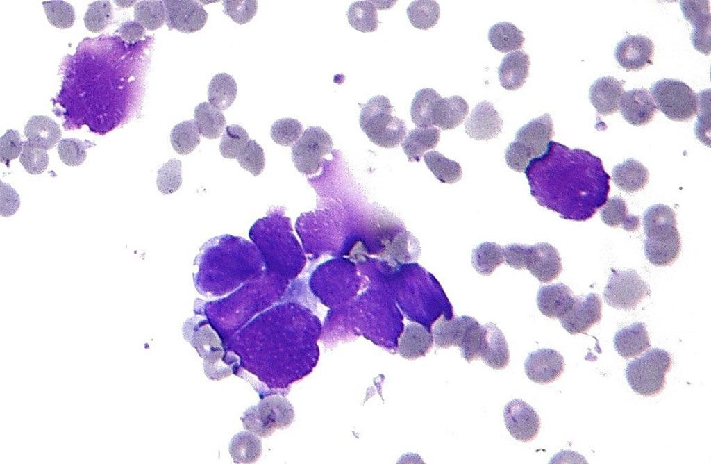 Imagen: Histopatología que muestra las características clave del carcinoma de pulmón de células pequeñas (CPCNM): moldeo nuclear; cromatina de sal y pimienta; y escaso citoplasma (Fotografía cortesía de Nephron).