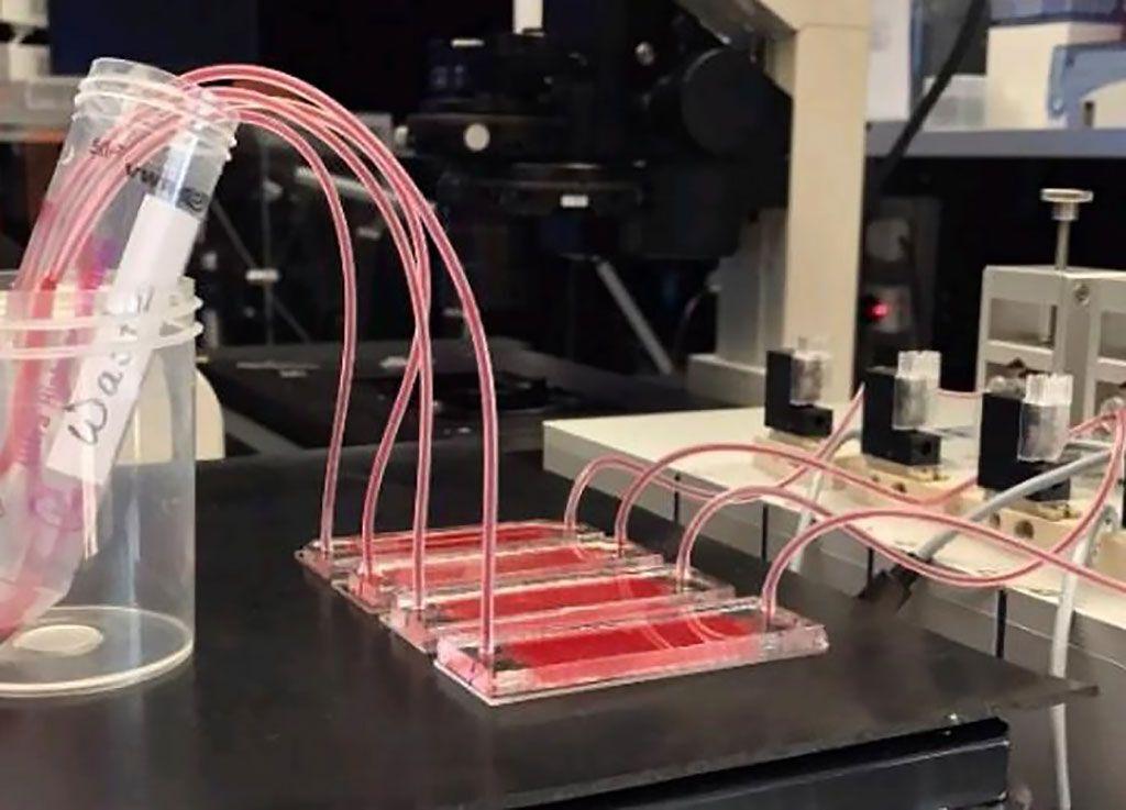 Imagen: Una nueva plataforma de análisis de fluidos permite el aislamiento de células tumorales circulantes (CTC), que se forman durante la metástasis (Fotografía cortesía de la NYU Abu Dabi)
