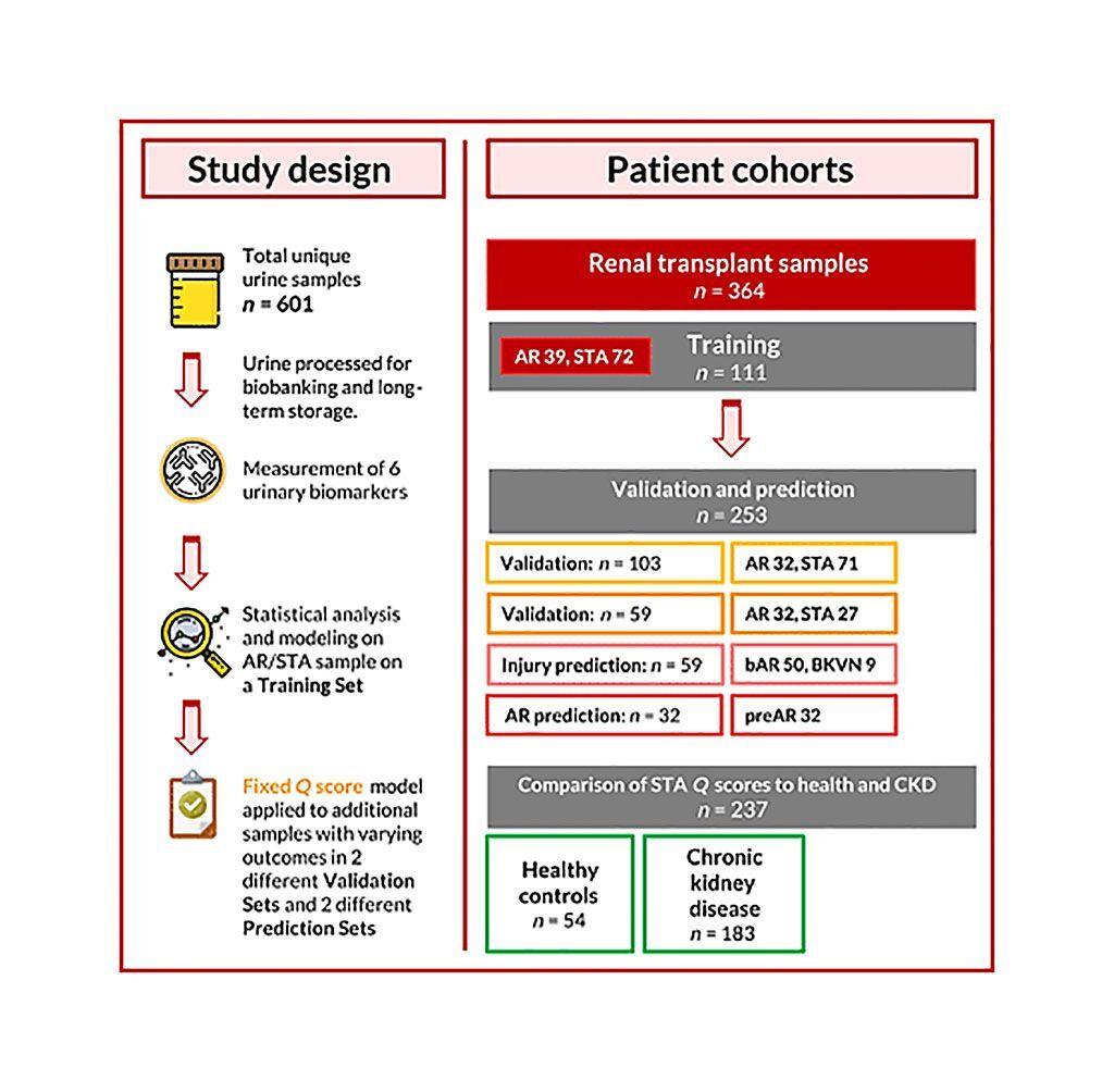Imagen: Diagrama esquemático de una puntuación de orina para el diagnóstico exacto no invasivo y la predicción del estudio de rechazo de trasplante de riñón (Fotografía cortesía de la Universidad de California, San Francisco).