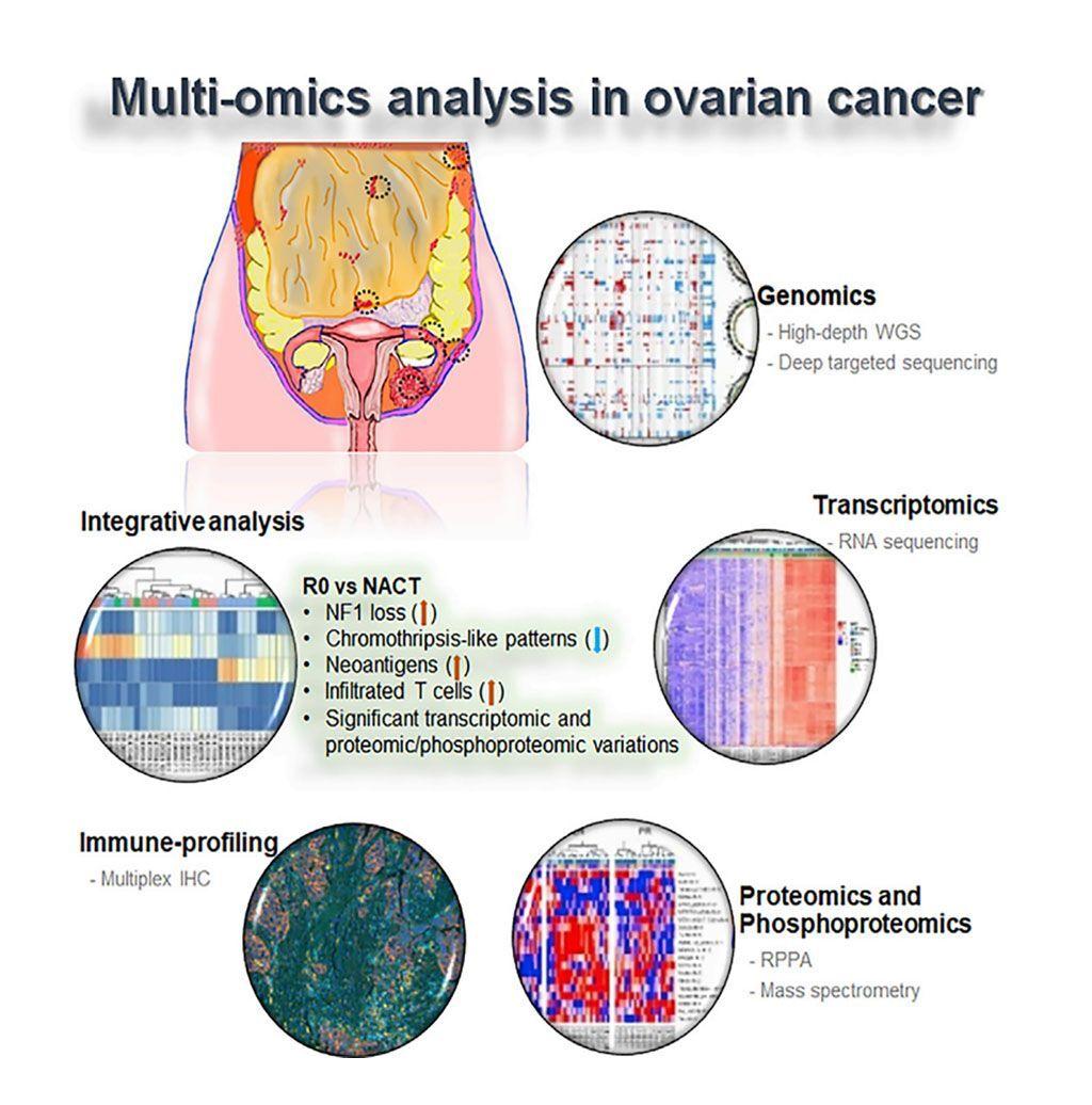 Imagen: Diagrama esquemático del análisis molecular de subconjuntos clínicamente definidos de cáncer de ovario seroso de alto grado (Fotografía cortesía del Centro de Cáncer MD Anderson).