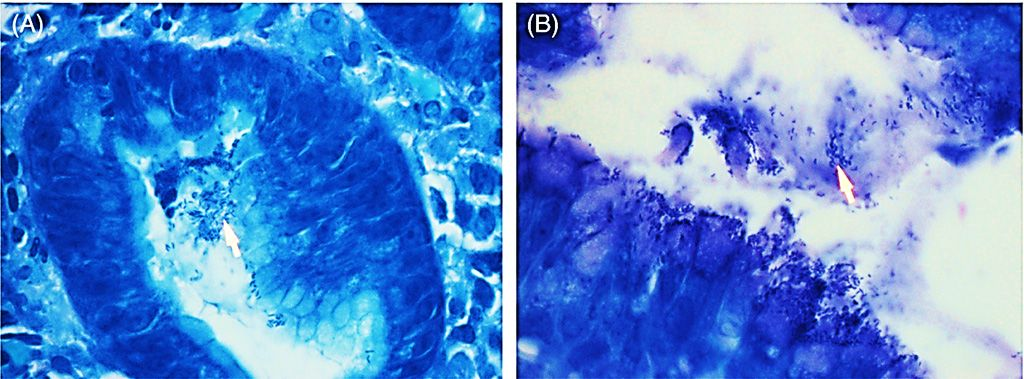 Imagen: Los resultados positivos de la infección por Helicobacter pylori usando la coloración tradicional de Giemsa. Las flechas blancas muestran el Helicobacter pylori (azul) teñido unido al borde en cepillo de las células epiteliales foveolares gástricas (Fotografía cortesía de los Institutos Nacionales de Investigación en Salud).
