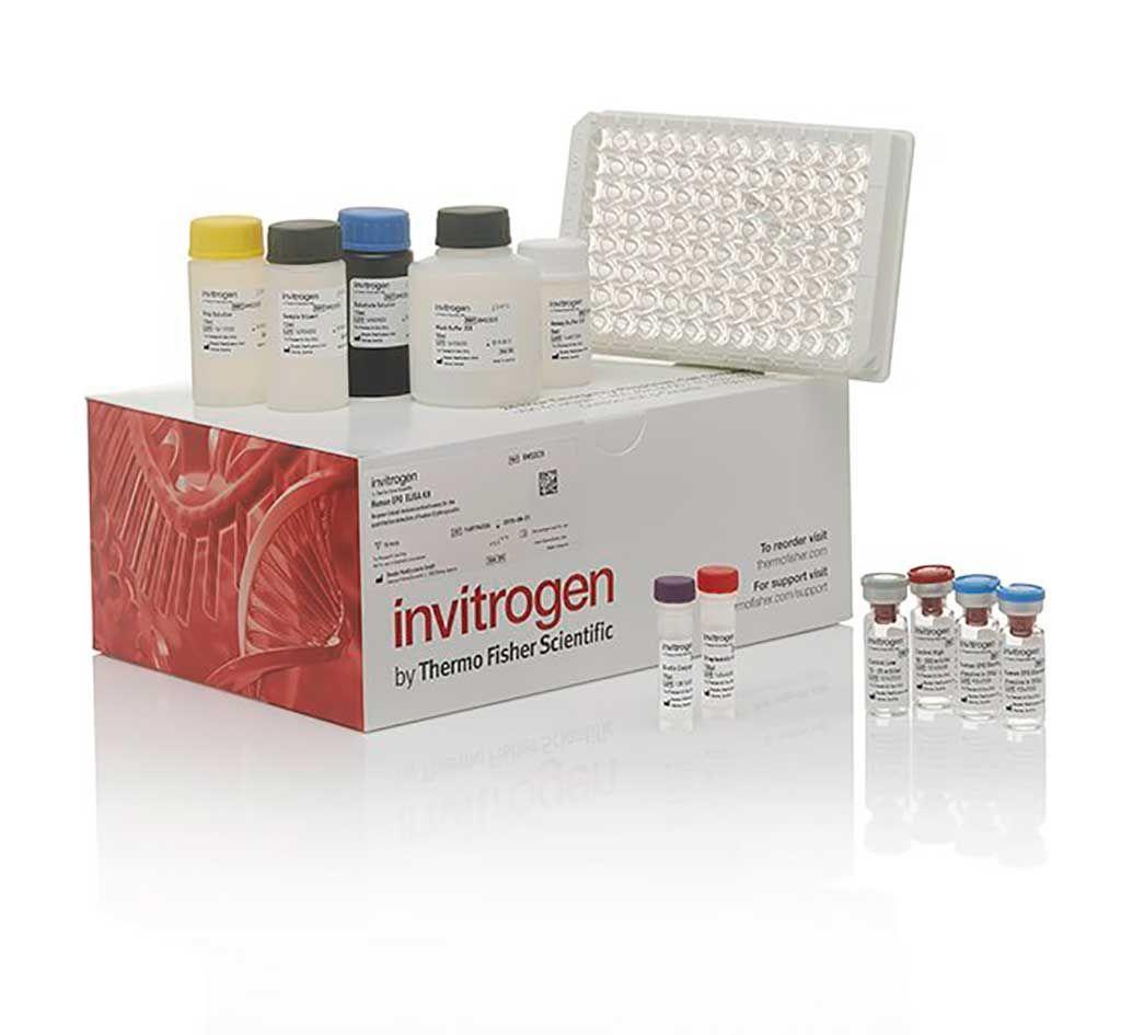 Imagen: El kit ELISA para la Clusterina Humana (Fotografía cortesía de Invitrogen).