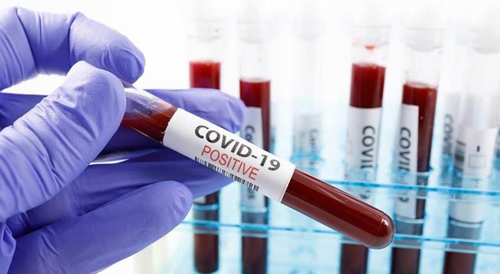Imagen: La detección de anticuerpos es crítica para el diagnóstico de la COVID-19 (Fotografía cortesía del Departamento de Salud de Minnesota).