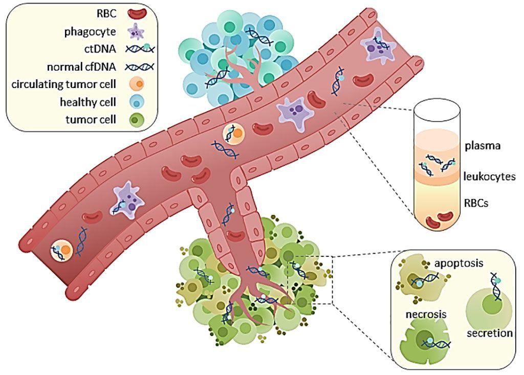 Imagen: Diagrama esquemático del ADN tumoral circulante (ADNc) que se encuentra en las fracciones de suero y plasma de la sangre. Se desconoce el mecanismo de liberación de ADNc, aunque se ha planteado la hipótesis de que se debe a la apoptosis, la necrosis y la secreción activa de las células tumorales. Una vez que se aísla el ADNc, se puede secuenciar para hacer un análisis de las mutaciones (Fotografía cortesía de Rachel June Wong).