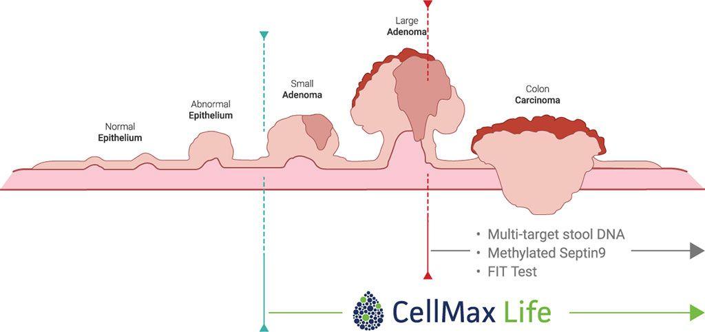 Imagen: Diagrama esquemático de la secuencia de adenoma-carcinoma; FirstSightCRC, un análisis de sangre no invasivo, puede detectar el cáncer colorrectal precoz (Fotografía cortesía de CellMax Life).