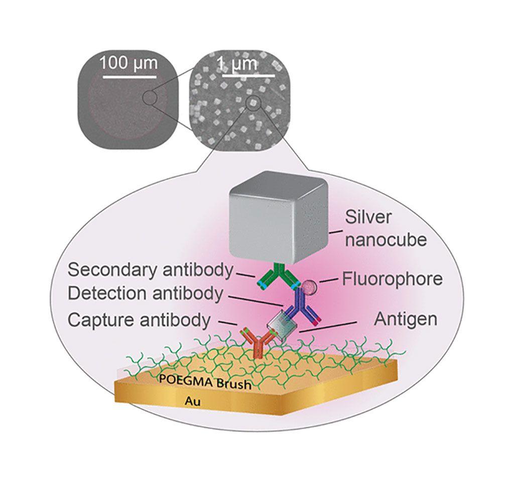 Imagen: Diagrama esquemático de la lectura de fluorescencia ultrabrillante de un inmunoensayo impreso por inyección de tinta utilizando cavidades nanogap plasmónicas (Fotografía cortesía de la Universidad de Duke).