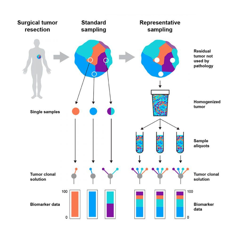 Imagen: Diagrama esquemático de cómo el método de muestreo representativo de tumores disminuye el sesgo en los análisis moleculares (Fotografía cortesía del Instituto Francis Crick).