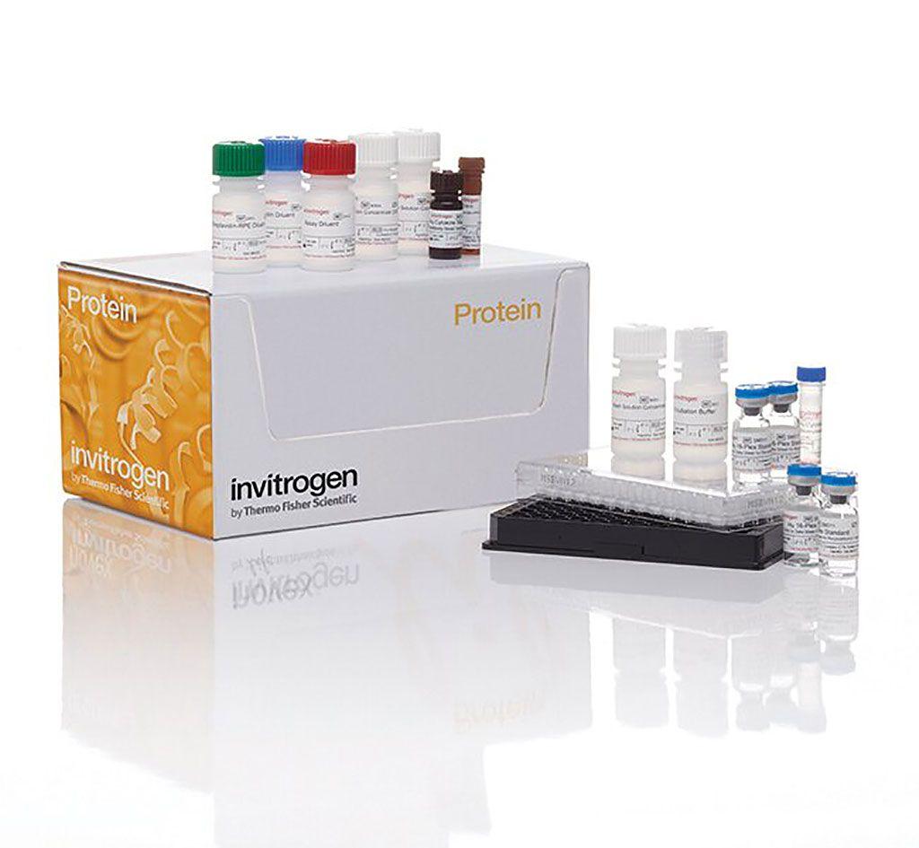 Imagen: El panel Cytokine Magnetic 30-Plex fue diseñado específicamente para cuantificar citoquinas, quimioquinas y factores de crecimiento humanos en suero, plasma y sobrenadante de cultivo de tejido (Fotografía cortesía de Invitrogen).