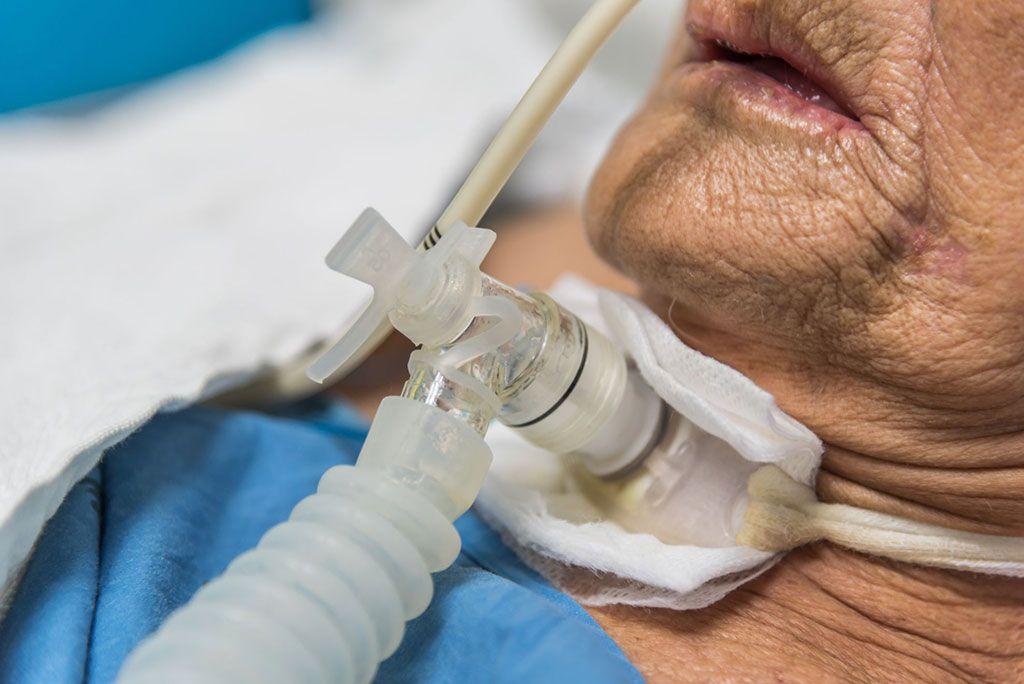 Imagen: La traqueotomía en pacientes con COVID-19 podría ser necesaria después de la intubación a largo plazo (Fotografía cortesía de Getty Images)